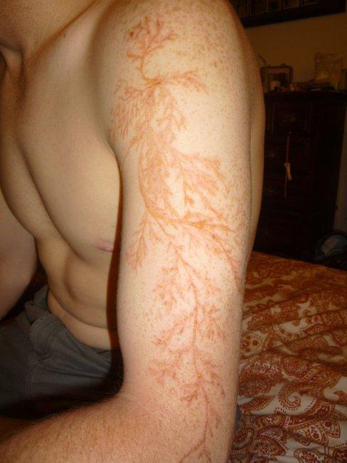 The Lichtenberg Scar