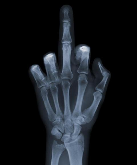X-ray Middle Finger.