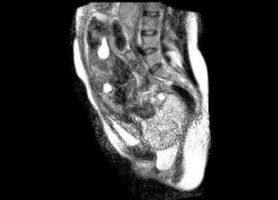 World's First Human Birth in an MRI