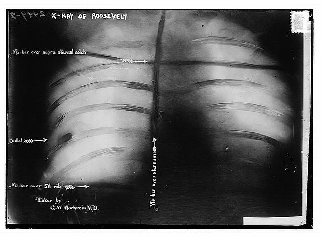 Theodore Roosevelt's x-ray - with the bullet still in his chest.