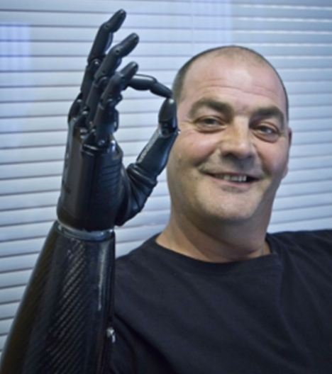 RSLSteeper launches third version of its bebionic myoelectric hand