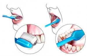 How to keep healthy teeth