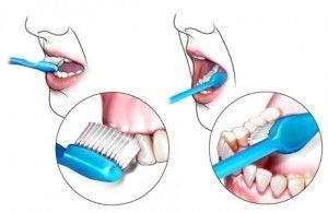 How to keep healthy teeth
