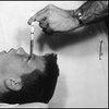 'My Lobotomy': Howard Dully's Journey