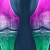 Bauer Health and Wellness Portal: How to Relieve Joint Pain Exercise or Supplements