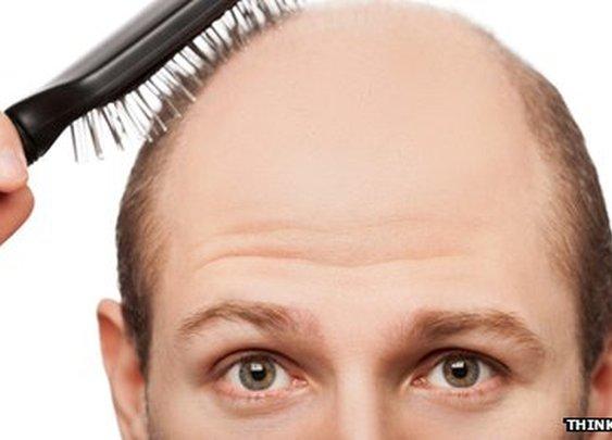 BBC News - Baldness treatment a 'step closer'