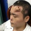 Chinese Man Needs New Nose, Gets A Head Start