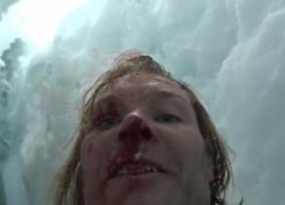 US professor frees himself from Himalayan ice hell despite massive injuries - NY Daily News