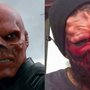 Superfan Has Nose Cut Off to Look like Red Skull