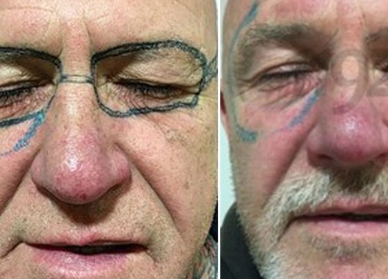 This man woke up after a stag do with 'Ray-Ban' sunglasses tattooed on his face - Wales Online
