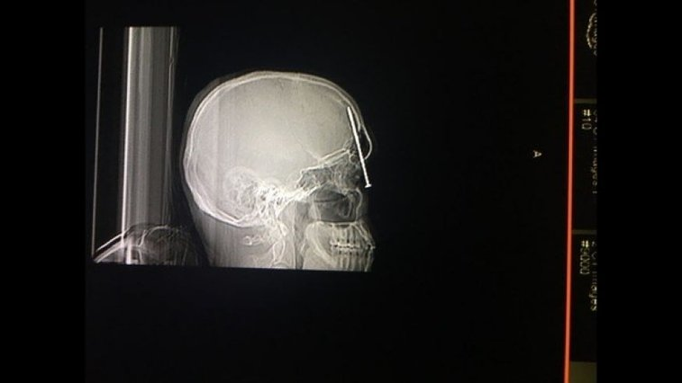 Home builder recovering after accidentally firing nail gun into head