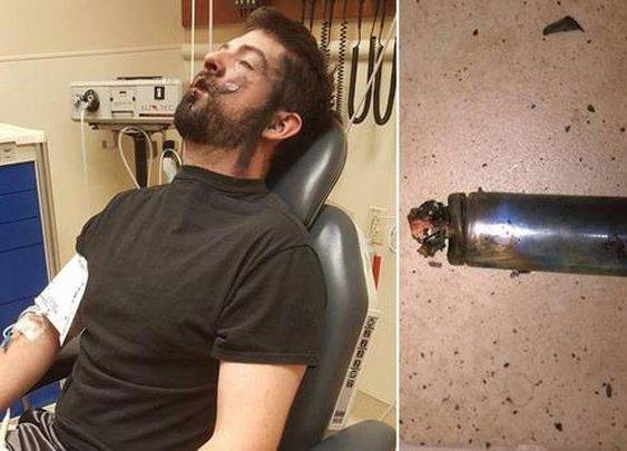 Vaper loses seven teeth after horrific e-cig explosion