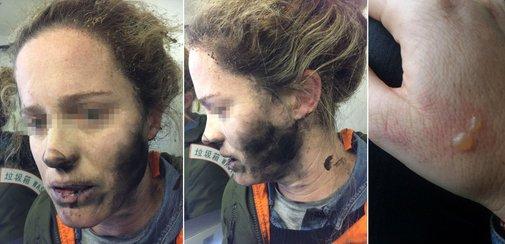 Headphone Batteries Explode on Flight, Burn Woman's Face and Hands