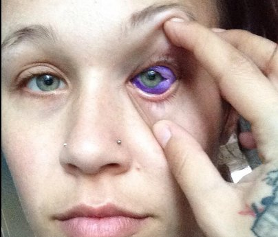 Model Goes Blind After Tattooing Eyeball