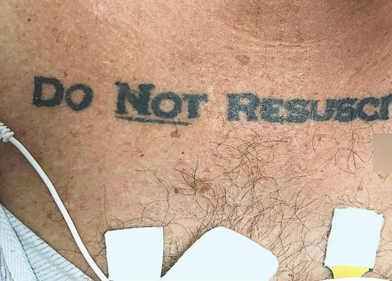 Man's tattoo leaves doctors debating whether to save his life