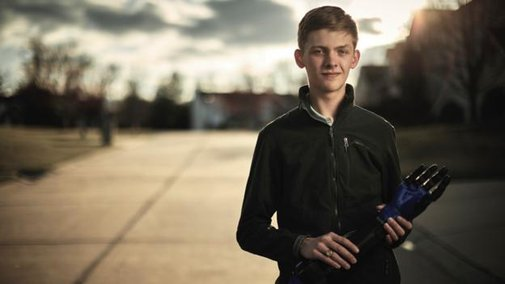 The teen who built a prosthetic arm for his dad