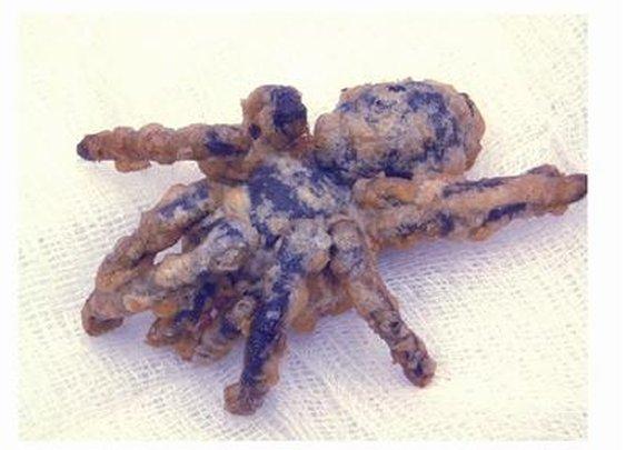 A Welsh View: Deep-Fried Tarantula