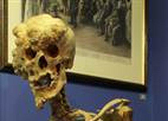 Replica Elephant Man skeleton goes on show