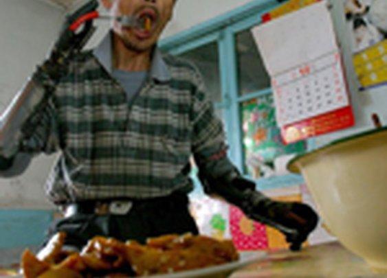 Man builds himself bionic hands | Photo Gallery - Yahoo! News