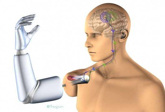 Mind-controlled permanently-attached prosthetic arm could revolutionize prosthetics