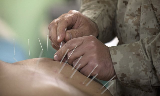Inspiyr.com | On Pins and Needles: The Benefits of Acupuncture