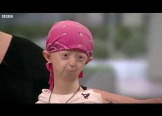 14-Year-Old Girl With a Rare Genetic Condition Called Progeria, Ages 8 Times Faster Than Normal