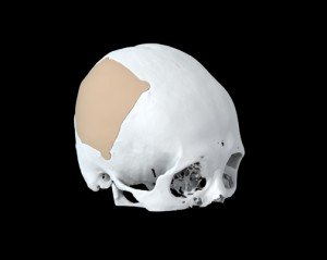Creating a life-saving skull plate with Geomagic technology