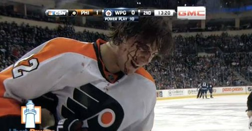 Luke Schenn Takes Puck to the Head, Blood Everywhere