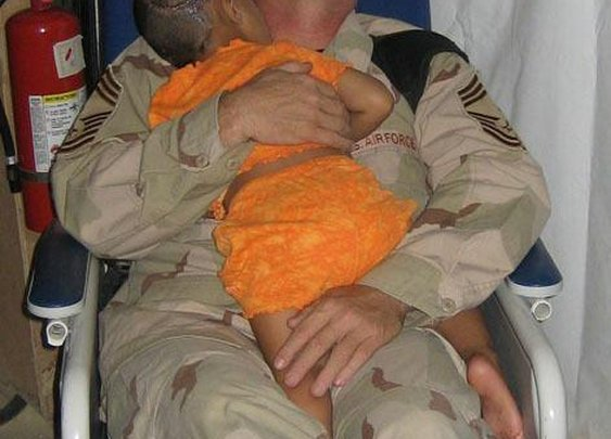Insurgents shot this little girl in the head and left her to die. John Gebhardt gave her comfort.