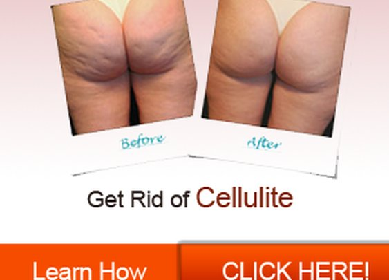 Anti Cellulite Cream - Reviews and Offers