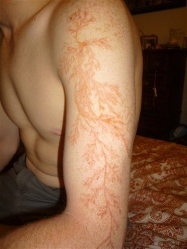 Lightning strike scars called Lichtenberg figures - Imgur