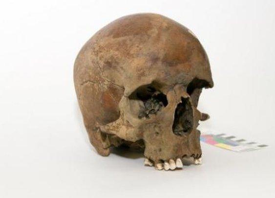 White man's skull has Australians scratching heads