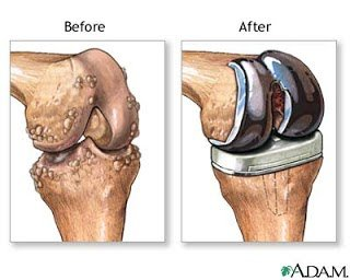 Bauer Health and Wellness Portal: How to Recover and Thrive Post Joint Replacement