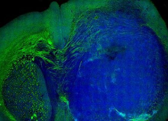 Laser-guided surgery finds brain cancer's boundary