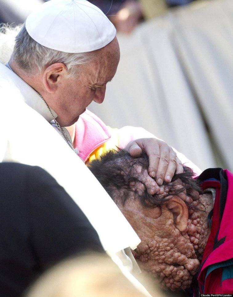 Pope Francis Kisses Severely Disfigured Man And Prays With Him