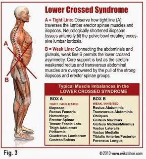 Bauer Health and Wellness Portal: Hip Flexor Pain, Injury and Stretch