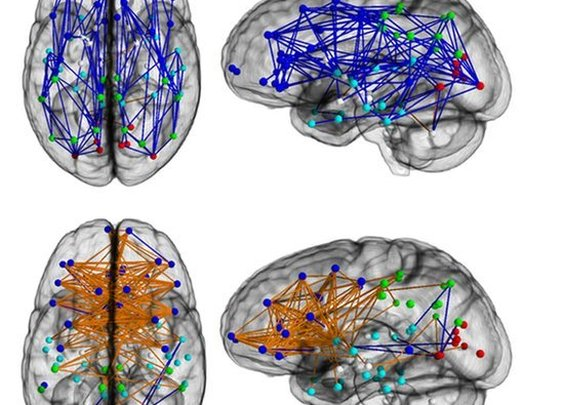 BBC- Men and women's brains are 'wired differently'