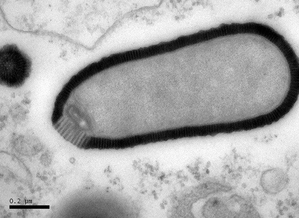 ScienceShot: Ancient Giant Virus Brought Back to Life, Still Infective | Science/AAAS | News