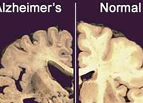 New Hope for Alzheimer's Sufferers: Cell Regeneration may Alleviate its Symptoms