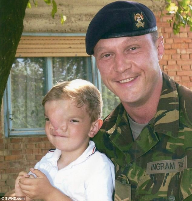 Soldier buys Bosnian boy new £100,000 Face
