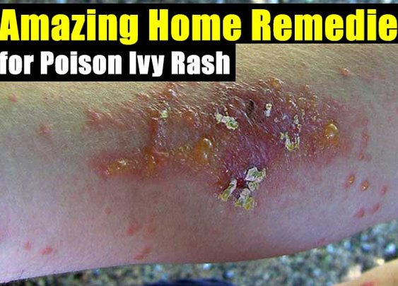 Amazing Home Remedies for Poison Ivy Rash - SHTF Preparedness