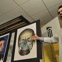First-ever human head transplant is now possible, says neuroscientist  –  Quartz