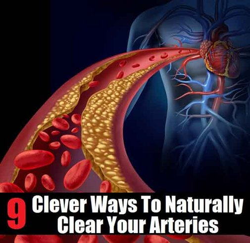 9 Clever Ways To Naturally Clear Arteries - LivingGreenAndFrugally.com