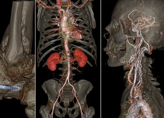 GE scanner in Florida reveals high-definition images of the human body | Daily Mail Online