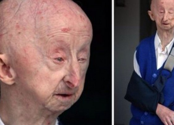 A woman raised thousands to help a disabled man after brutal attack