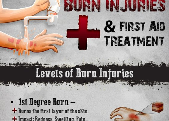 When it is a Burn Injury- The Right Care is recommended