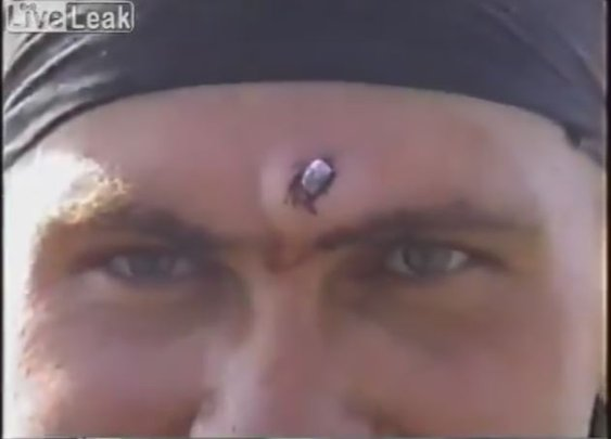 Russian Soldier Gets Bullet Removed From Forehead WithPliers