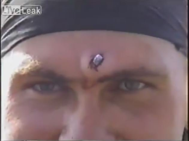 Russian Soldier Gets Bullet Removed From Forehead With Pliers