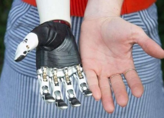 The world's first most lifelike bionic hand