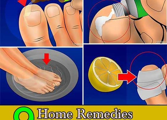 9 Home Remedies for Ingrown Toenails - Home and Gardening Ideas